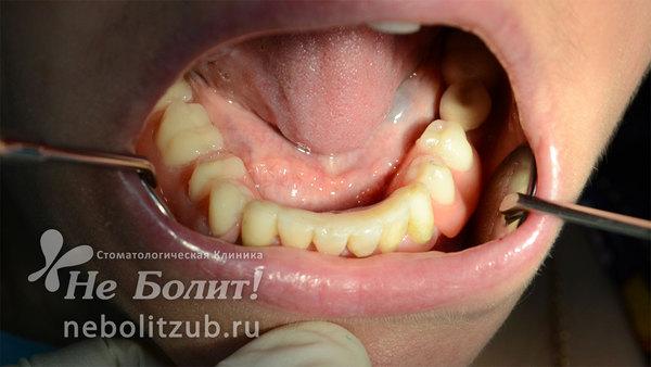 Протезирование при отсутствии жевательных зубов.  В чем преимущества бюгельных протезов на имплантатах по сравнению с другими видами протезирования?