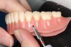 Починка, ремонт акриловых съемных протезов и протезов из материала Акри-Фри