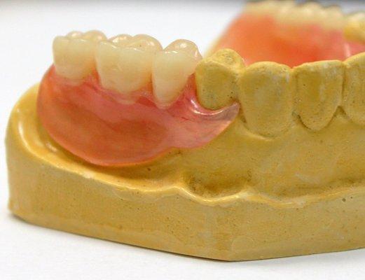 Сроки изготовления съемных зубных протезов