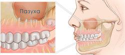 Гайморит как причина ноющей боли верхних боковых (жевательных) зубов