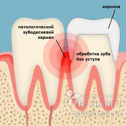 Болит десна, ноет зуб под коронкой при нажатии