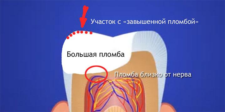 Что делать когда болит зубной нерв в  388