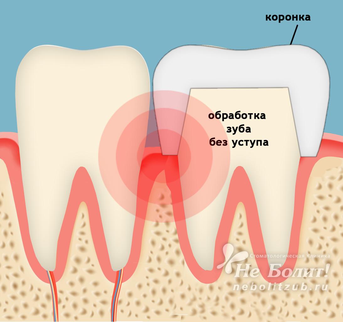 Удалять или не удалять нерв переднего зуба