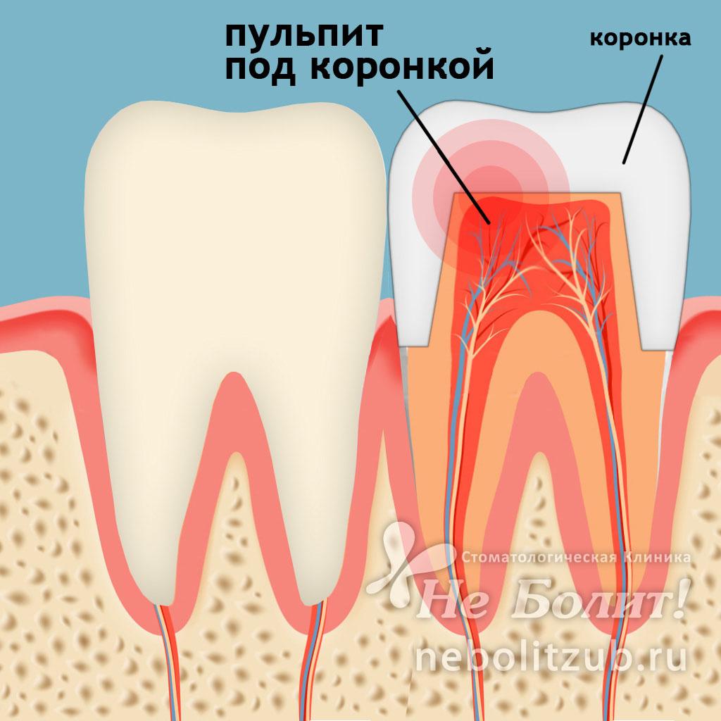 Обязательно удалять нерв из зуба под коронку