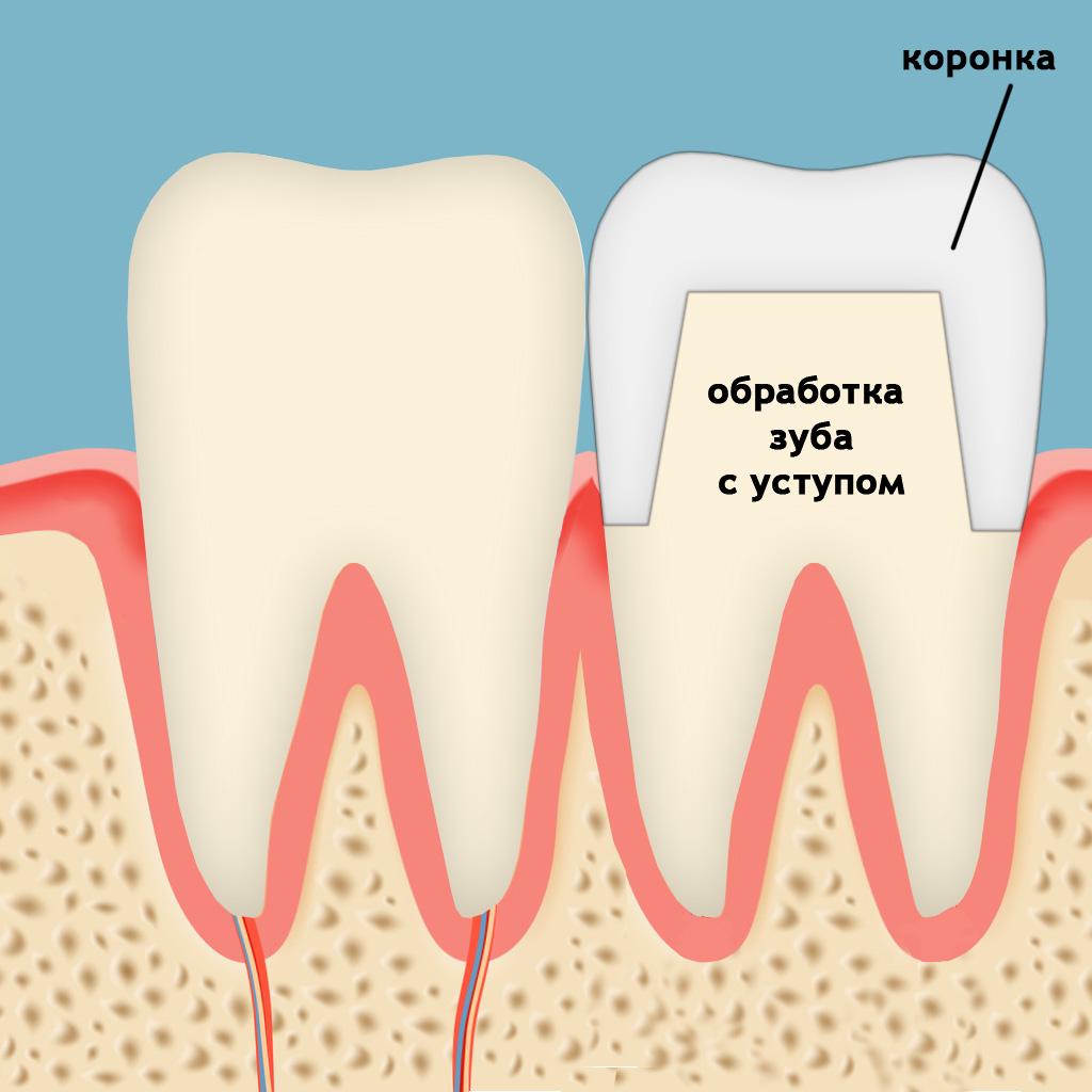 Щитовидная железа симптомы у женщин лечение фото