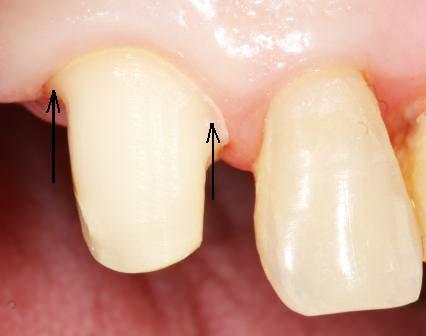 Болит обточенный под коронку зуб что делать60