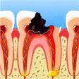 Все зубы сильно разрушены