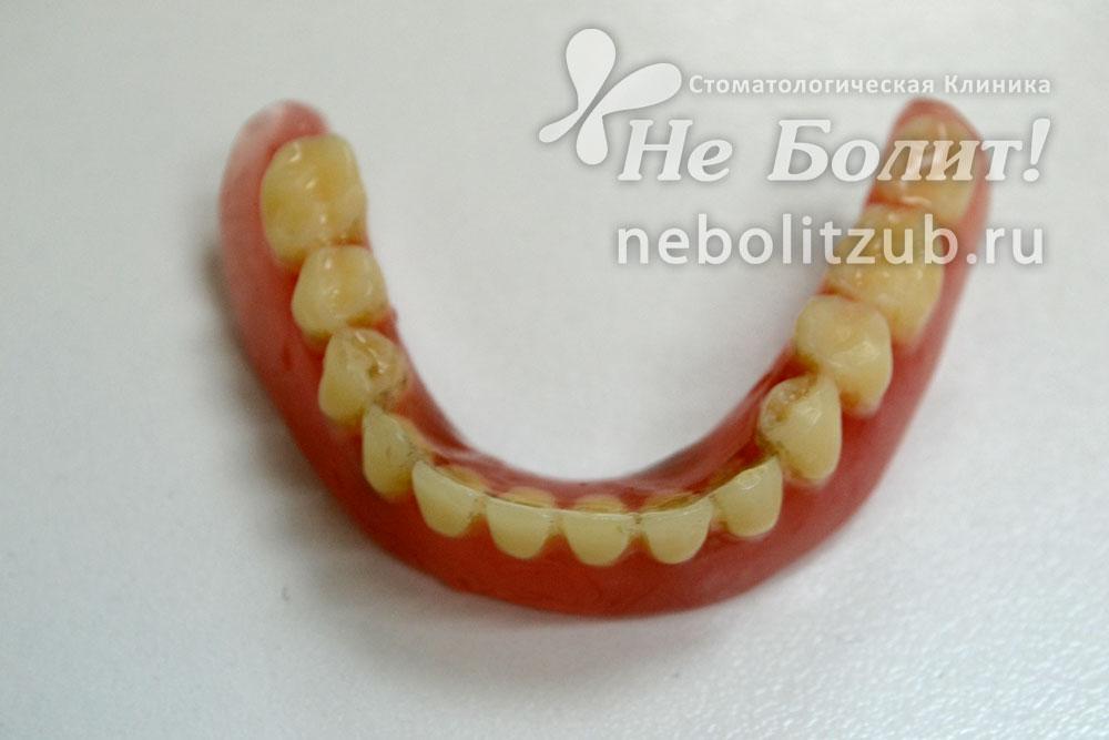 Как быть если зубной протез сделали плохо 897